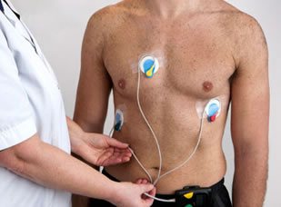 holter 24h